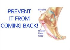 Avoid running with Plantar Fasciitis