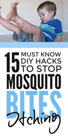 Mosquito bite remedy - DIY insect bite relief to stop the itch and swelling fast with homemade remedies from stuff in the house including essential oils. Help prevent swollen redness and safe for kids. Mosquito Bite Relief, Bug Bite Relief, Stop Mosquito Bite Itch, Bug Bite Swelling, Mosquito Bite Swelling, Remedies For Mosquito Bites, Treatment For Mosquito Bites, Prevent Mosquito Bites, Essential Oils