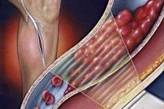 cum stii ca ai cheaguri de sange in organism Ale, Health, Google, Home Remedies, Legs, Doubles Facts, Women, Varicose Veins, Health Care