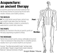 Pain relief through Acupuncture. www.360chiropractic.com   360 Chiropractic, Sartell MN 257-0360