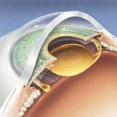 Cross-section of the eye showing a multi-focal (ReSTOR) lens in place