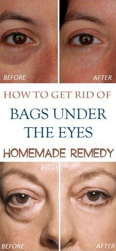 Check these quick homemade remedies for bags under eyes. Try one of these remedies to get rid of them for good!