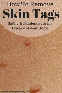 Find out how to remove skin tags quickly & safely, in the privacy of your home.