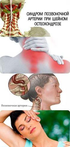 Синдром позвоночной артерии при шейном остеохондрозе Neck Problems, Yoga, Reflexology, Healthy Tips, Face And Body, Health And Beauty, Health Care, Health Fitness, Workout