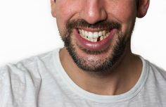 Before we start our discussion on the importance of replacing teeth, let us make our self informed about what dental implant is? Dental implants are nothing but a surgical positioning of a screw like titanium into the jawbone. Implant Dentistry, Cosmetic Dentistry, Dental Implants, Dental Hygienist, Dental Health, Oral Health, Dental Care, Uk Health, Teeth Health