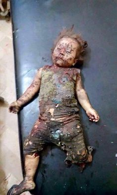 Save / / This is what Russia and its allies, including the U., do to the innocent people of Syria. What could possibly justify ending a child's life in such a horrific way. Look at this child and understand what is really happening. Crime, Syrian Children, Dramas, Innocent People, Shit Happens, History, Palestine, Planet Earth, Van Gogh
