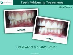 Check out the #RealResults for a Teeth Whitening Treatment successfully done at Dr. Kandhari's Dental Clinic by our eminent dentists.. #TeethWhiteningTreatment #HappyPatients