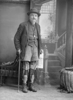 William Tennant with Prosthetic Legs by Wisconsin Historical Images, via Flickr