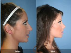 Before & After Nose Job!!! Omg let me save up 12 grand for braces, boon job & nose job! This nose is so much better!