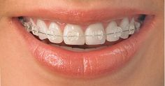 Clear braces that can only come from Radiance pure sapphire brackets! Contact us for more info on ceramic braces in Manchester and Cheshire now!