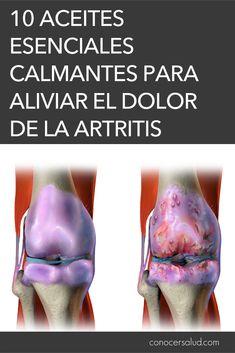 La artritis es una enfermedad en la que las articulaciones se inflaman y causan mucho dolor. Las personas que sufren de artritis, de cualquier tipo,