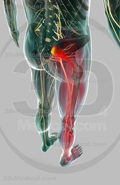 """From WebMD: """"Piriformis syndrome is an uncommon neuromuscular disorder that is caused when the piriformis muscle compresses the sciatic nerve."""" http://www.dralexjimenez.com/causes-of-piriformis-syndrome/"""