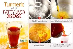 turmeric for fatty liver disease