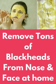 Remove Tons of Blackheads From Nose & Face at home Today I will share an amazing remedy to remove blackheads from the skin and give your skin a fairer complexion. This will remove the excess sebum from the pores and make them smaller. Apply this remedy at least 2 times in a week for good results. Ingredients you will need – 1 tablespoon of yogurt …