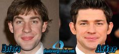 John Krasinski Nose Job recently becomes hot topic of discussion among his fans and plastic surgeon.He reportedly got nose job to refine the wide nose Plastic Surgery Facts, Rhinoplasty Surgery, Celebrity Plastic Surgery, John Krasinski, Born This Way, Perfect Man, Face And Body, Celebrities, Tips