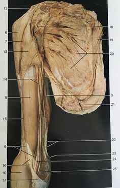 Ventral aspect muscles of right arm (some attached muscles like pectoralis major & minor removed brachii, brachioradialis, triceps brachii, teres, Muscle Anatomy, Body Anatomy, Human Anatomy, Muscle Body, Muscle Fitness, Medical Art, Medical School, Forearm Muscles, Human Body