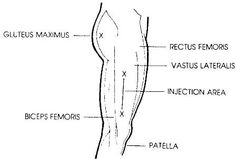 Location for thigh injection
