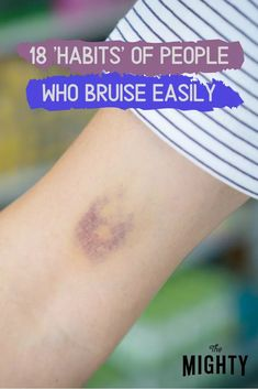 18 'Habits' of People Who Bruise Easily