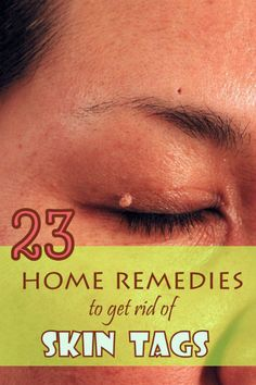 Though not harmful, skin tags can affect your pretty looks. Here are some simple home remedies to get rid of skin tags. #skintags #beauty #homeremedies