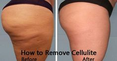 The appearance of the cellulite is caused by unhealthy lifestyle or by genetics. The cellulite consists free – floating fat cells which are deposited under the skin. It looks like the surface of orange peel [Read More]