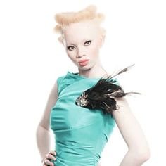 Thando Hopa grew up in the shade, her porcelain skin protected by long sleeves and sunscreen until the day the South African decided to fight prejudice against albinos by becoming a model.