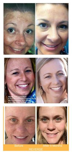 How people are removing sun damage, pregnancy mask/melasma, and dark spots WITHOUT laser treatment! Rodan and Fields to the rescue!
