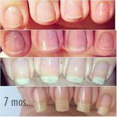 Guida per far crescere le unghie velocemente  #nailart ...per visualizzare il CONSIGLIO➨➨➨ http://www.womansword.it/donna-bellezza-consigli/beauty-fai-da-te/beauty-fai-da-te-unghie/guida-per-far-crescere-unghie-velocemente/