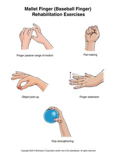 Summit Medical Group - Mallet Finger (Baseball Finger) Exercises