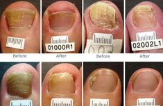 9 Best How to get rid of toenail fungus images | Toe nails