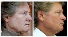 Men want to look younger ,too!