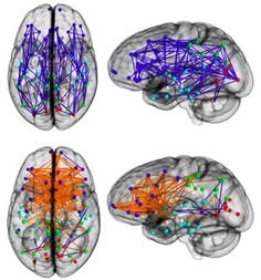 """Male brains have more connections within each hemisphere, while female brains are more interconnected between hemispheres. The researchers found that in men, fiber pathways run back and forth within each hemisphere, while in women they tend to zig-zag between the left, or """"logical,"""" and right, or """"creative,"""" sides of the brain. Female brains seem to have a stronger connections between their logical and intuitive parts"""