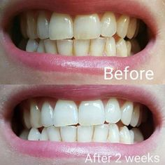 Have you heard about our amazing Whitening Toothpaste??   No bleaches  No peroxide or harsh chemicals  Safe for kids  Amazing for wine coffee and nicotine      stains  If you want your hands on yours comment below  or message me   Christina xx