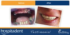 After Dental Implants Photos in Istanbul, Turkey