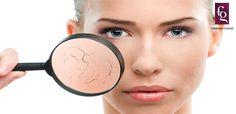 Essential Dry Skin Remedies For Winters   Fashion Gossip