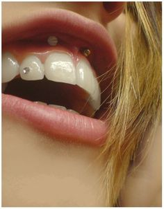simley and tooth piercing