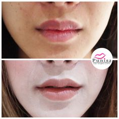#Punisaclinic #ศัลยกรรม #ปาก #ศัลยกรรมปาก #ปากบาง #ปากกระจับ #ปากปีกนก  #Beauty #Number1 #Lips #LipReduction #LipSurgery #Professional #Lip #Reduction #Surgery #Thailand #plasticsurgery #lipreductionsurgery #thailand #doctorthinlips#Punisaclinic #lipsurgery #lipreduction#lipreductionsurgery #asianlips #plasticsurgeons#plasticsurgery #Thailandsurgery Lip Surgery, Lips, Makeup, Make Up, Beauty Makeup, Bronzer Makeup