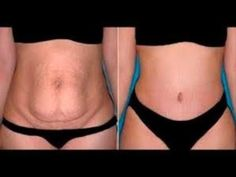 Want to Lose Weight Fast? Detoxing is one of the Best Ways to Lose Weight Naturally. Click the Link and Get FREE Weight Loss Detox Report NOW. Belly Fat Burner, Burn Belly Fat, Tummy Tuck Surgery, Metabolic Diet, Metabolic Disorders, Abdominal Fat, Stubborn Belly Fat, Tummy Tucks, Loose Weight