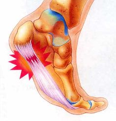How to treat plantar fasciitis.