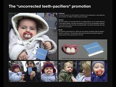 """Dr. Rathenow orthodontist: The """"uncorrected teeth-pacifiers"""" promotion   Ads of the World™"""
