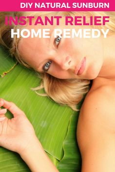 Wiith all those summer sleeveless tops you're going to be wearing, you never know when a sunburn might hit! The good news is there's things you can do to help relieve the pain and discomfort of a sunburn. Click to get this easy 3 ingredient homemade recipe to help cool you down instantly. | The Best DIY Homemade Instant Sunburn Relief Remedy