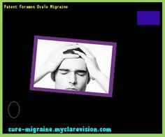 Patent Foramen Ovale Migraine 115609 - Cure Migraine