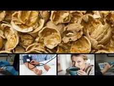 Nucile, sursa de sanatate, de la coaja, pana la miez - YouTube Flora, Health, Diabetes, Grid, Fictional Characters, Youtube, Varicose Veins, Health Care, Plants