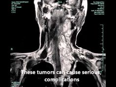 We Can All THRIVE With Neurofibromatosis