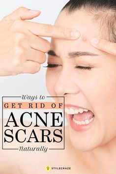 You cannot make the scars disappear overnight, but with a few remedies and skin care tips, you can experience a noticeable difference over time. All you need to do is to find the desired method for your skin type. 26 Simple Ways To Get Rid of Acne Scars Naturally