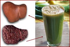 Natural Beverage For Cleansing Fatty Liver