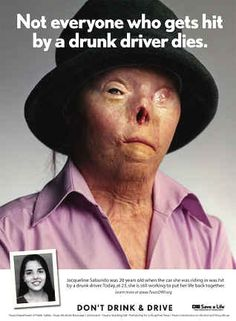 Jacqueline Saburido was hit by a drunk driver in Austin, Texas.  She was pinned inside the vehicle as it caught on fire, leaving her with  severe burns over 60 percent of her body.