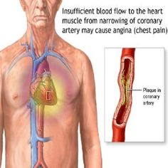 In angina, a patient may feel chest pain and discomfort. When the heart muscle gets an insufficient blood oxygen supply, it leads to angina. Heart Failure Treatment, Angina Pectoris, Nursing Care Plan, Study Nursing, Medical Surgical Nursing, Medical Care, Heart Function, Heart Muscle, Health
