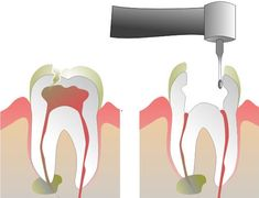 Root Canal Cover up exposed -- Dr. Weston A. Price and The Root Canal Cover-Up http://educate-yourself.org/cn/rootcanalcoverup02apr04.shtml