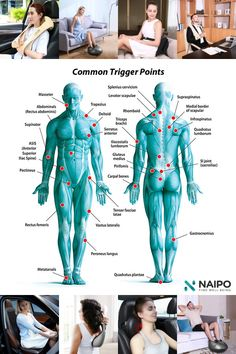 Trigger points can cause a lot of pain in our muscles. Here's some information on what trigger points are, and some solutions to relieve your pained muscles. Health Facts, Health Quotes, Massage Logo, Trigger Point Therapy, Frozen Shoulder, Medical Anatomy, Acupressure Points, Massage Techniques, Trigger Points