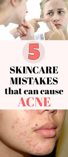 Read here 5 skincare mistakes that can cause acne.